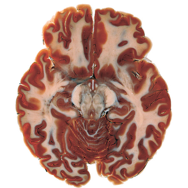 Horizontal brain slice