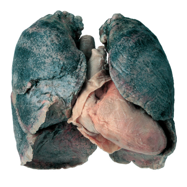 Heart and lung specimen of a smoker