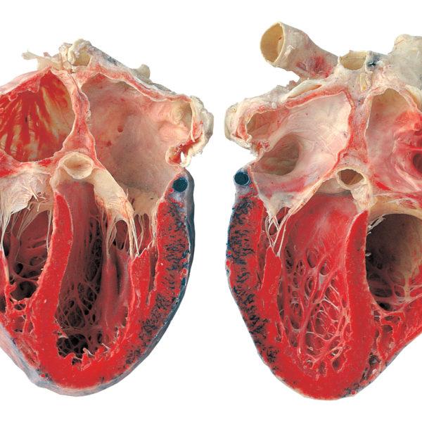 The heart, opend longitudinally