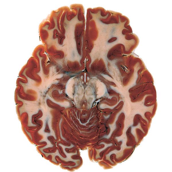 Horizontal brain slice