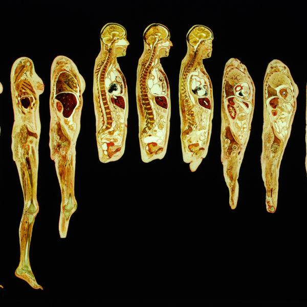 Series of longitudinal body slices