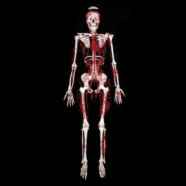 Arterial Bone Body