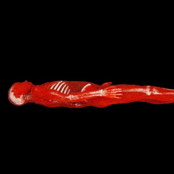 Arterial Man